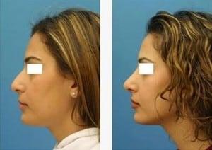 cirugia plastica nariz